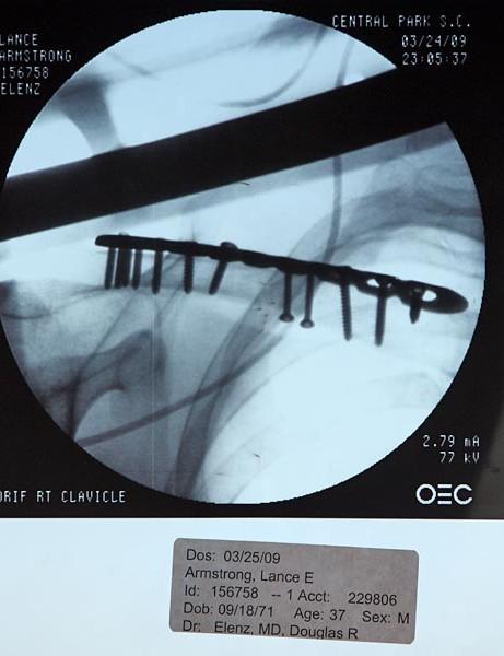 Lance's post-op x-ray