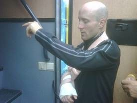 Levi Leipheimer after surgery in France July 17, 2009.