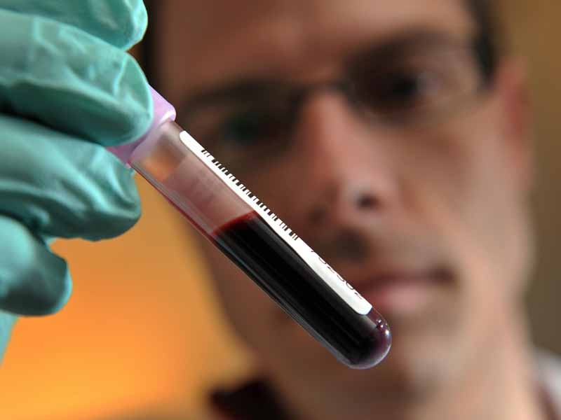 A new test for human growth hormone could pave the way for positive tests in cycling