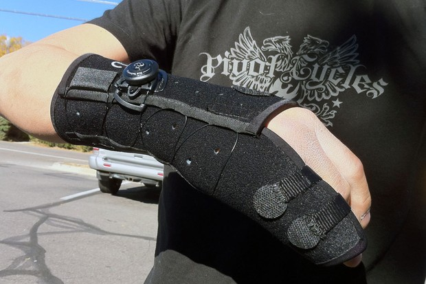 A fancy Boxer's Fracture Brace from Exos Medical has made James's life much easier