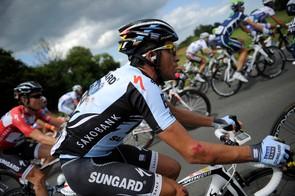 Alberto Contador didn't escape stage 5 unscathed
