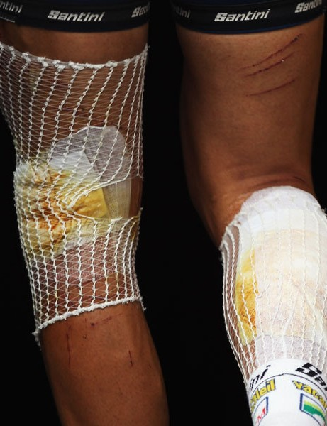 The bandaged legs of Jonny Hoogerland, a couple of days after he was knocked into a barbed wire fence by a TV car
