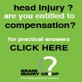 Head injury? Are you entitled to compensation?