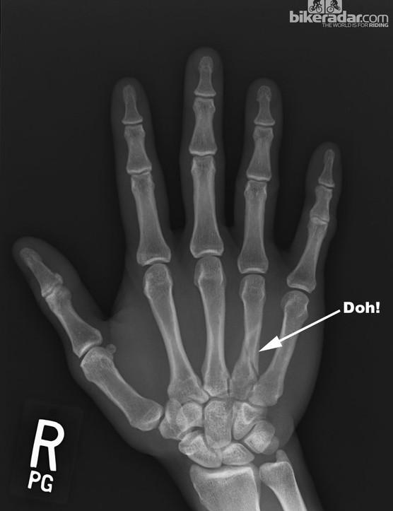 Broken bones suck, but having broken bones without the safety net of health insurance would suck even more