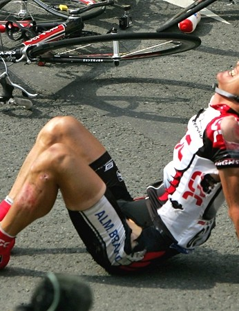 Road rash is painful, but treatable