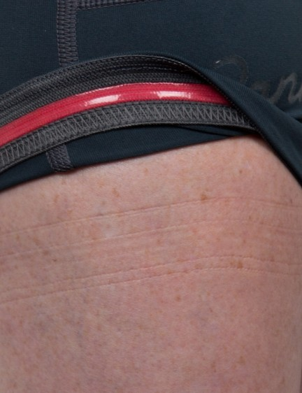 The bottom of the legs stay in securely place without any unwanted pressure or pinching