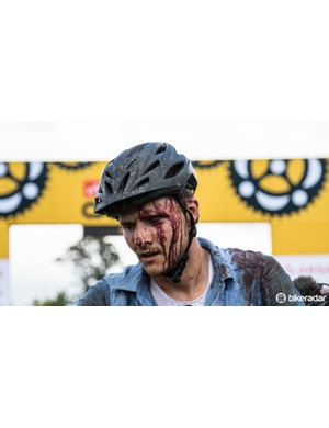 Riding for SwiftCarbon, Charles Keey had seen better days on the bike. We're told the mechanic found blood inside the headset bearings. Five stitches and Charles finished the event