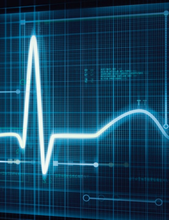 Know the warning signs: shortness of breath, fatigue, chest pain, lightheadedness and/or palpitations