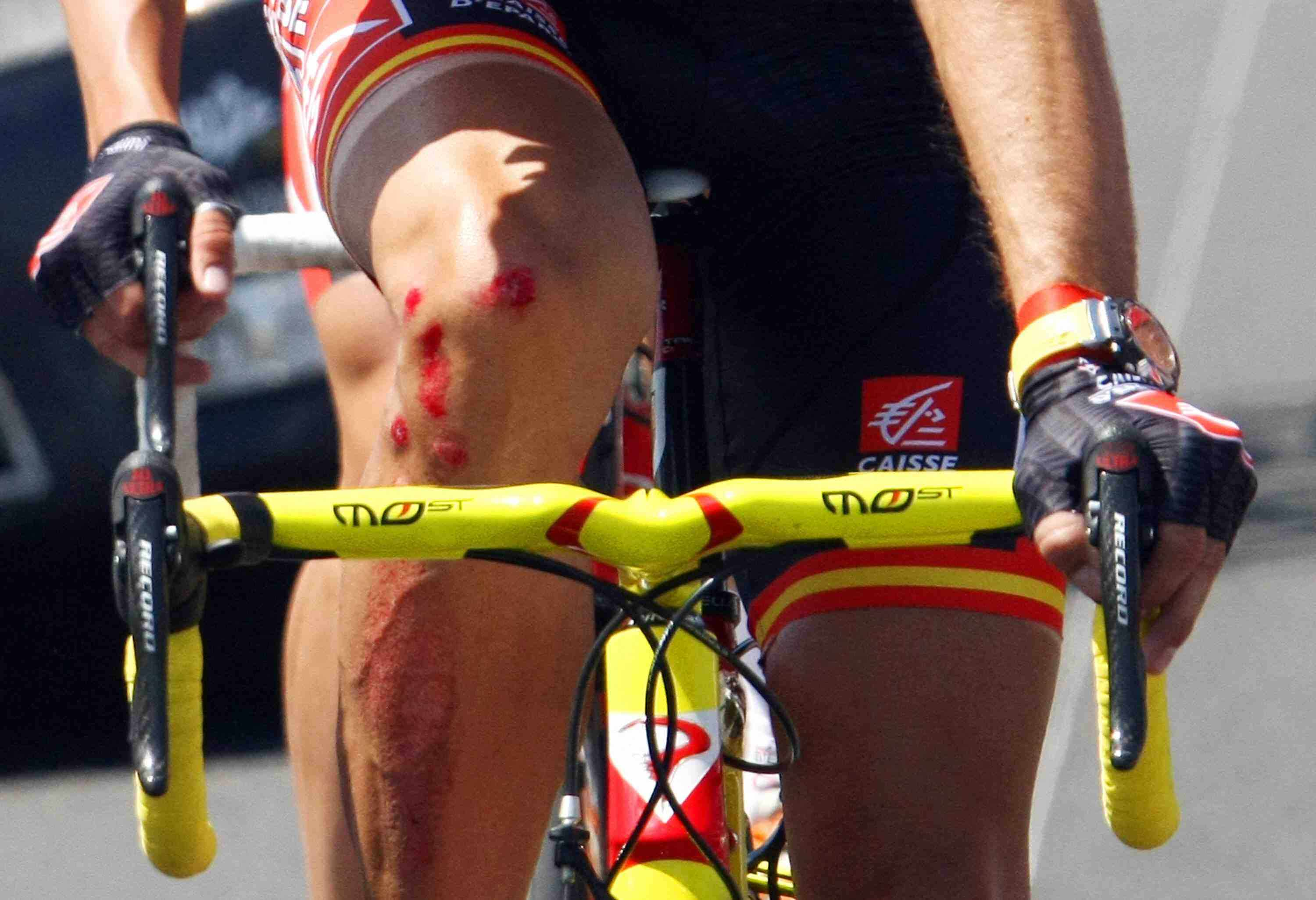 Alejandro Valverde crashed during the 5th stage of the Tour, but continued the race.