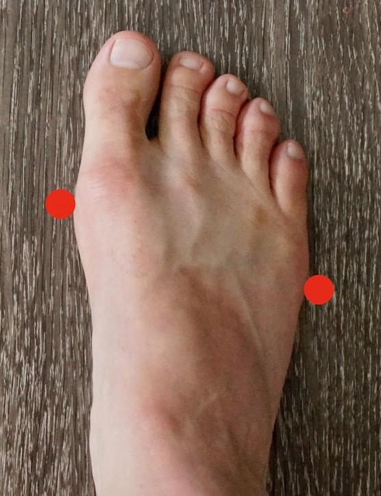 The red dots identify the 1st (left) and 5th (right) MTP (metatarsalphalangeal joint) — guesstimating the 3rd is a common starting place for fore/aft placement