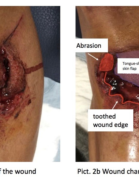 Zollinger also analyzed Ventoso's wound with various illustrations in his published report