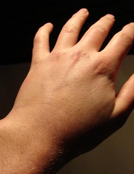 Franenstein's wrist