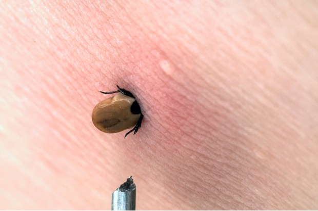 Tick in man's arm
