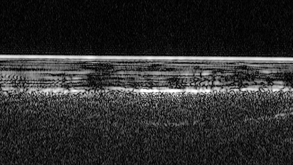A radar profile of the south polar region of Mars. The bright feature at the top is the icy surface, and layers of ice and dust are seen extending about 1.5km deep. The brightest reflections from the base layer close to the centre of the image are interpreted as a pond of liquid water. Credit: ESA/NASA/JPL/ASI/Univ. Rome; R. Orosei et al 2018