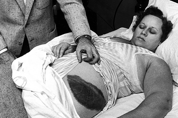 American Dr Moody Jacobs shows a giant bruise on side and hip of his patient, Ann Elizabeth Hodges (1923 - 1972), who had been struck by a meteorite while inside her home, Sylacauga, Alabama, late 1954. (Photo by Jay Leviton/The LIFE Images Collection/Getty Images)
