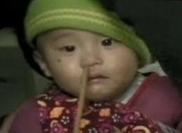 14-month-old-survives-chopstick-up-nose_10317