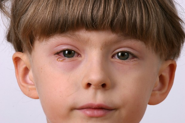 6-toddler-eye-problems_27593