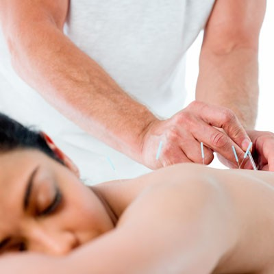 a-five-minute-guide-to-acupuncture_70747