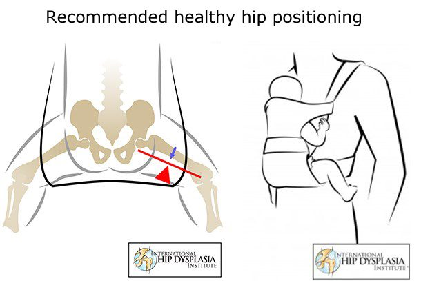 hip dysplasia infant carriers