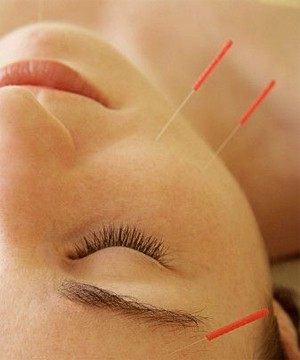 can-acupuncture-help-you-conceive_71293