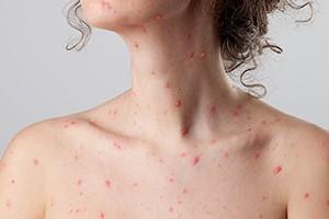 chickenpox-during-pregnancy_175939