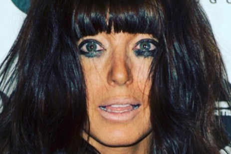 claudia-winkleman-describes-moment-her-daughter-caught-on-fire_186481
