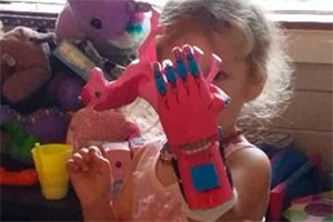 dad-makes-epic-3d-printed-superhero-prosthetic-hands-and-arms-for-kids_174681