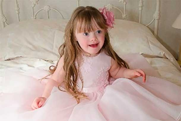 downs-syndrome-mums-story_eloise5