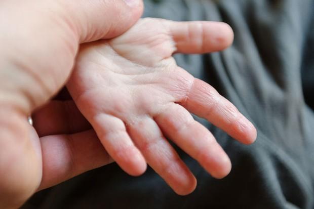 eczema-is-a-precursor-to-food-allergies-in-children_48820