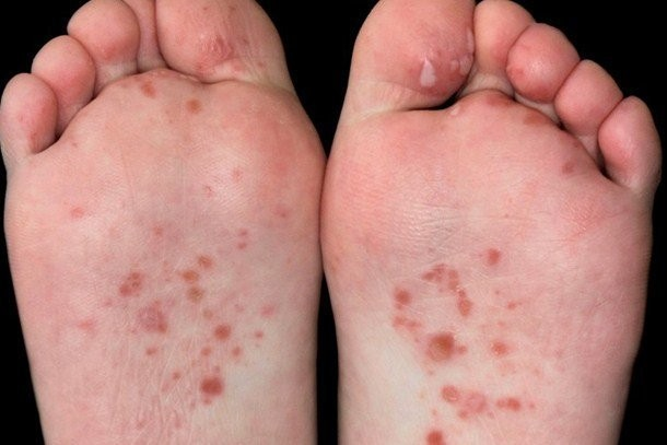 Hand foot and mouth disease in toddlers: symptoms and treatment -  MadeForMums
