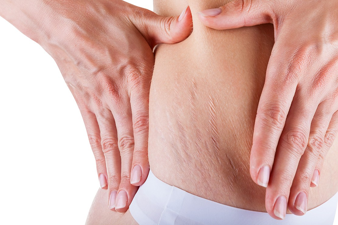 how-do-you-get-rid-of-stretch-marks_60197