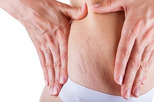how-do-you-get-rid-of-stretch-marks_60198