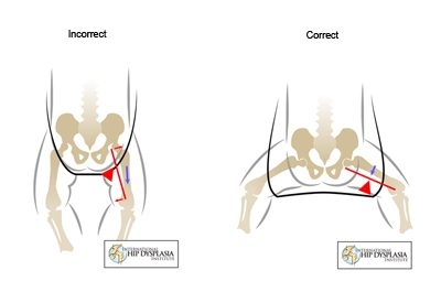 hip problems in infants