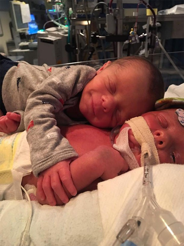 incredible-photo-of-twins-hugging-in-the-nicu-is-also-heartbreaking_162123