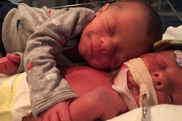 incredible-photo-of-twins-hugging-in-the-nicu-is-also-heartbreaking_162141