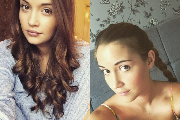 jacqueline-jossa-shares-post-pregnancy-hair-loss-selfie_127571