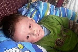 mums-plea-to-help-cure-son-of-debilitating-eczema_130157
