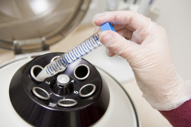 new-ivf-screening-could-help-older-women-conceive_26436