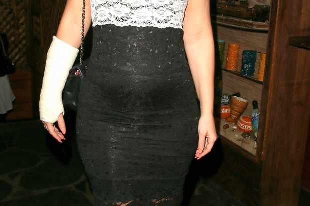 pregnant-kimberley-walsh-doesnt-let-broken-wrist-stop-her-plans_53431