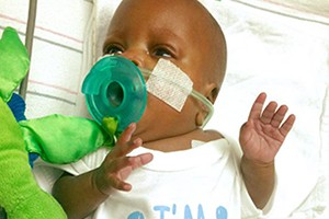 premature-baby-from-viral-video-defies-all-the-odds_147007
