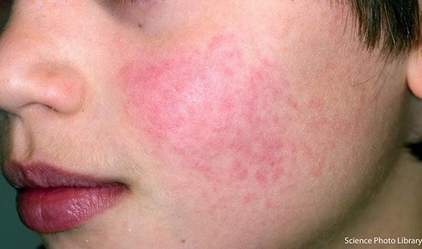 slapped-cheek-syndrome_220130