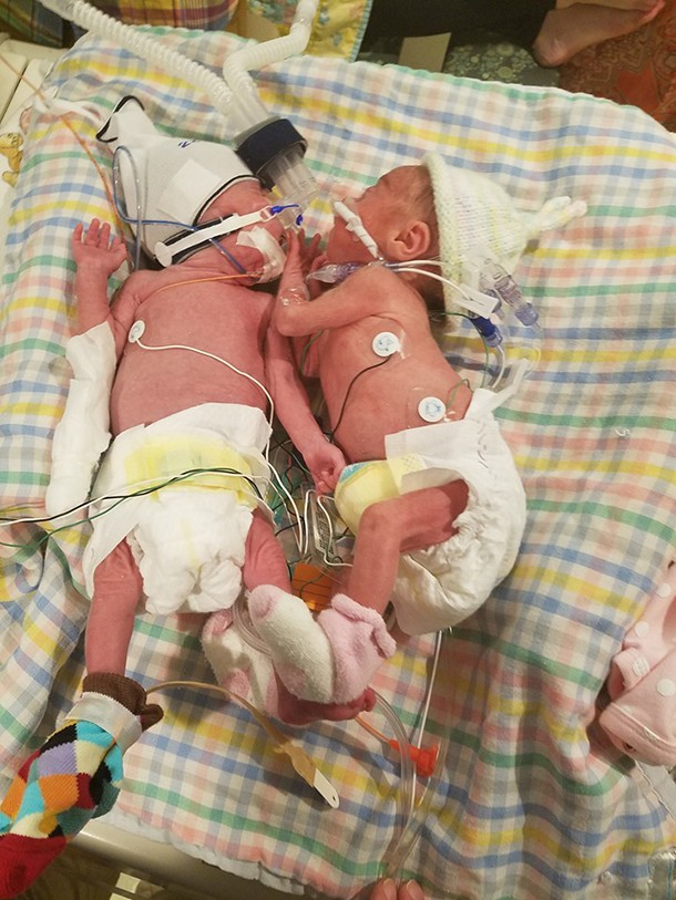 the-amazing-twins-born-5-weeks-apart_148561