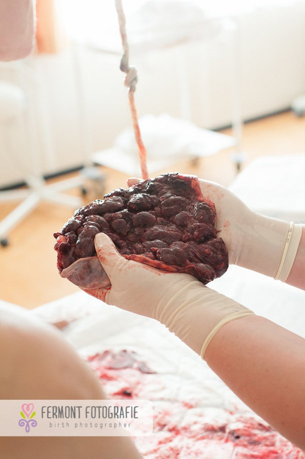 this-is-what-a-placenta-really-looks-like_148033