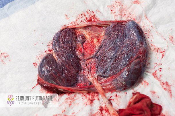 this-is-what-a-placenta-really-looks-like_148036