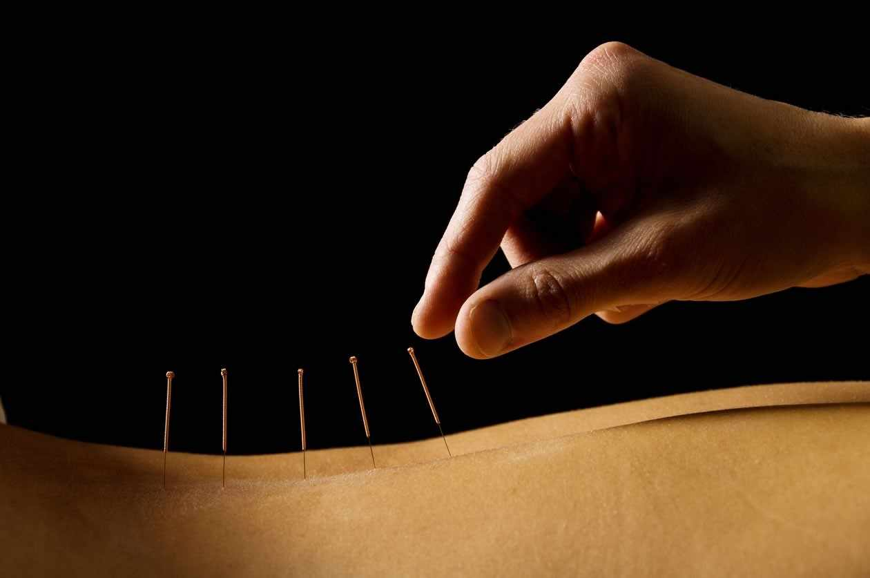using-acupuncture-to-turn-your-breech-baby_1572