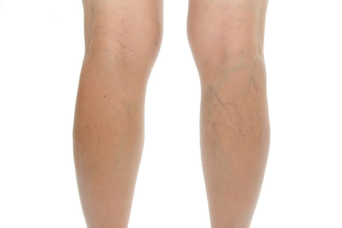 varicose veins in pregnancy groin