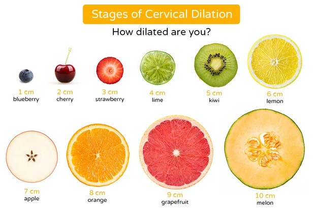 cervical-dilation