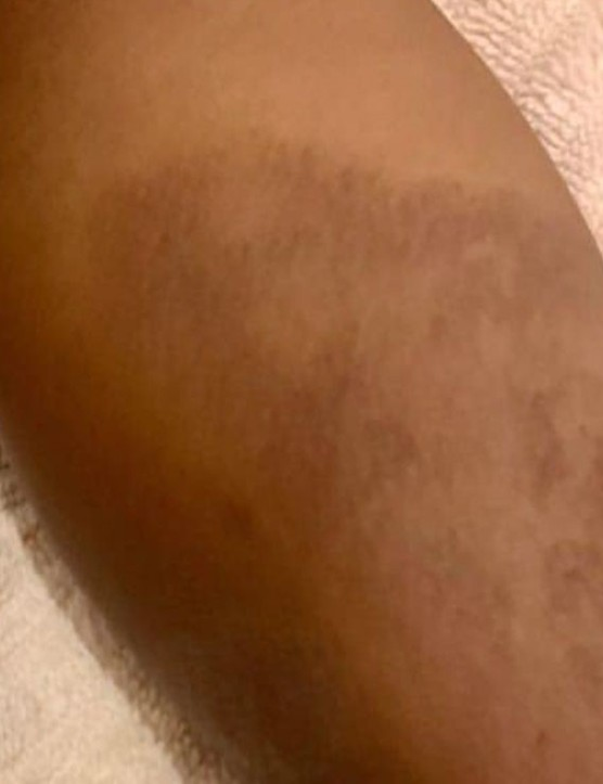 eczema black skin