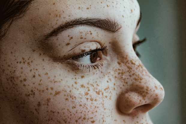 What causes freckles on the human body? © Getty Images