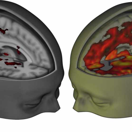 Landmark study reveals the effect of LSD on the brain
